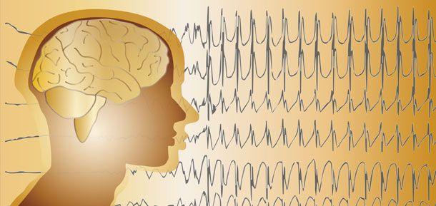 dieta cetogénica como opción terapéutica en la epilepsia refractaria