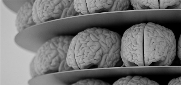 La anatomía del cerebro de los pacientes con esquizofrenia es ...